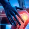 Gonartrosi, terapia infiltrativa con triamcinolone esacetonide efficace quanto quella con metilprednisolone acetato
